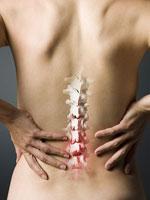 chiro-chronic-back-pain-margate