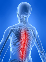 chiro-margate-disc-problems
